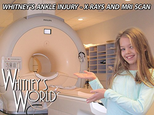 whitneys-ankle-injury-x-rays-and-mri-scan