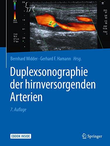 Duplexsonographie der hirnversorgenden Arterien
