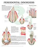 Periodontal disorders e chart: Full illustrated (English Edition)