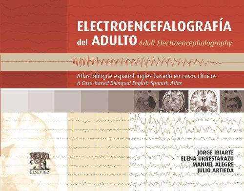 Electroencefalografía del adulto: Atlas bilingüe español-inglés basado en casos clínicos por Jorge Iriarte Franco