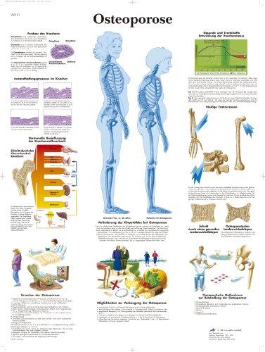 3B Scientific Lehrtafel laminiert - Osteoporose