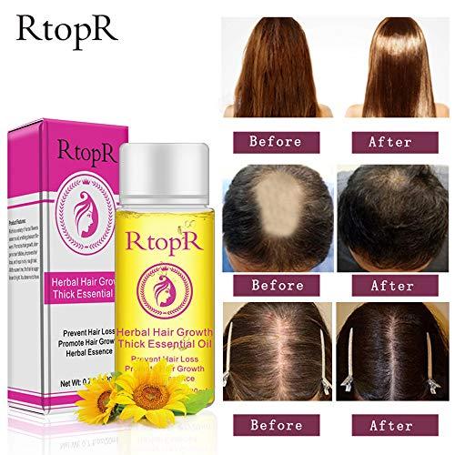 Gaddrt 1pc hair growth essence liquido fast hair growth natural hair loss treatment-1pc liquido per la crescita dei capelli