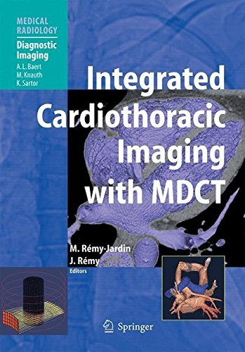 Integrated Cardiothoracic Imaging with MDCT (Medical Radiology) (2008-10-27)