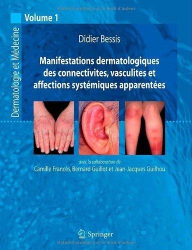 Manifestations dermatologiques des connectivites, vasculites et affections syst¨¦miques apparent¨¦es: Dermatologie et m¨¦decine, vol. 1 (French Edition) by Bessis, Didier (2006) Paperback