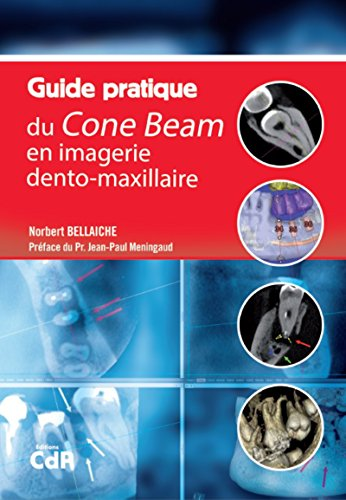 Guide pratique du Cone Beam en imagerie dento-maxillaire par Norbert Bellaiche