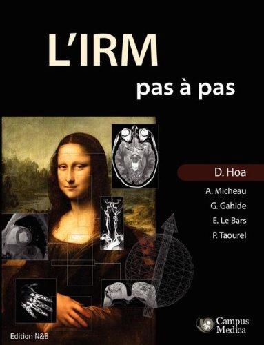 L'IRM Pas a Pas (Edition Noir & Blanc)