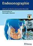 Endosonographie: Leitfaden und Atlas von Christoph Frank Dietrich (9. Januar 2008) Gebundene Ausgabe