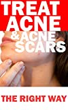 TREAT ACNE & ACNE SCARS THE RIGHT WAY: Causes, no more acne cure, home remedies treatments, diet tips, acne care for clear and acne free skin for life, back, neck, chest, face pimples