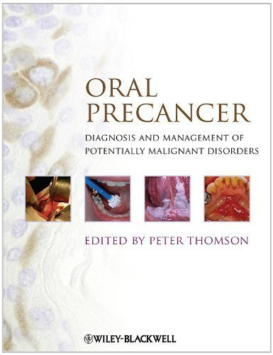 Oral Precancer: Diagnosis and Management of Potentially Malignant Disorders (2012-04-23)