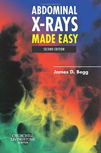 Abdominal X-Rays Made Easy, 2e