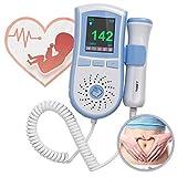 Careshine Appareil A Effet Doppler pour Enregistrement du Rythme Cardiaque Fœtal Avec Affichage LCD Multicolore Pas Cher