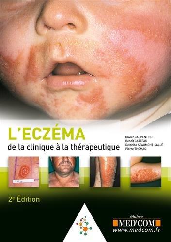 L'eczéma : De la clinique à la thérapeutique