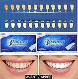 Professionelles Bleaching für Weiße Zähne 3D White