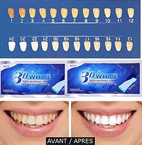 Blanqueamiento de dientes 3D Blanco - 28