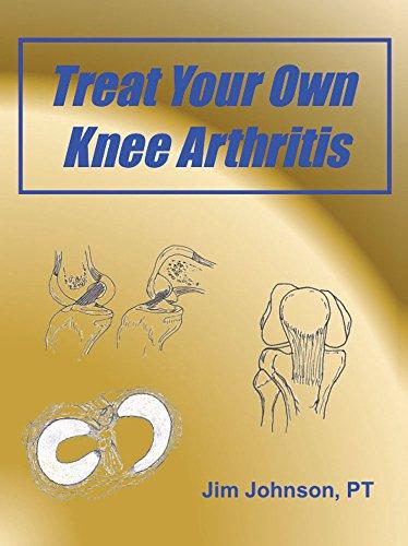 Treat Your Own Knee Arthritis (English Edition)