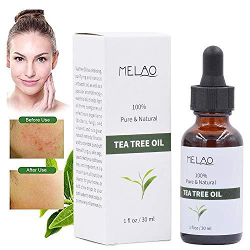 Colinsa Teebaumöl, ätherische Öle des Teebaums, lindert häufig auftretende Hautirritationen, ätherisches Öl des Teebaums, rissige, trockene Haut, Nagelhaut und Pickel