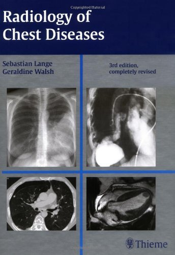 Radiology of Chest Diseases by Sebastian Lange (2007-08-02)