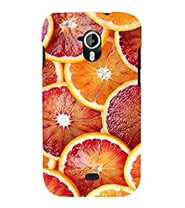 PrintVisa Designer Back Case Cover for Micromax Canvas HD A116 :: Micromax A116 Canvas HD (Painitings Watch Cute Fashion Laptop Bluetooth )