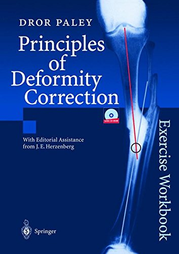 Principles of Deformity Correction: Exercise Workbook