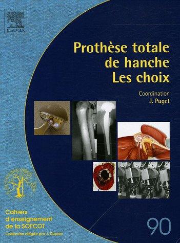 Prothèse totale de hanche : Les choix