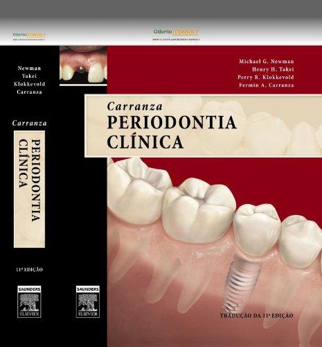 Carranza Periodontia Clinica (Em Portuguese do Brasil)