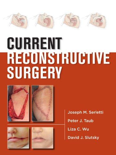 Breast Form Store (Current Reconstructive Surgery (Lange Current))