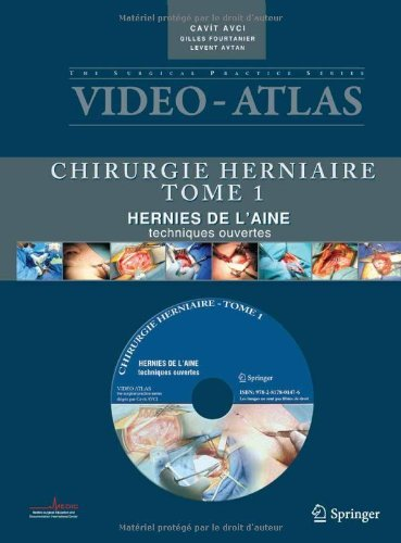 Vid????o atlas Chirurgie herniaire: I. Hernie de l'aine, techniques ouvertes (Video-Atlas Chirurgie Herniaire) (French Edition) by Cavit Avci (2011-06-08)