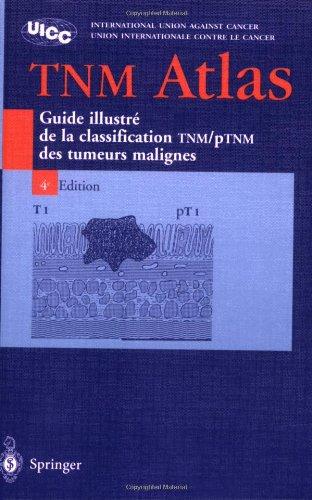 Atlas TNM : Guide illustré de la Classification TNM / pTNM des tumeurs malignes