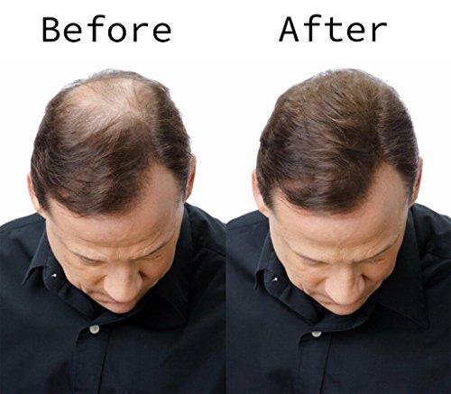 marrone-BLISSANY-Hair-Fibers-Ispessimento-dei-capelli-Perdita-di-e24