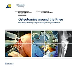 Osteotomies Around the Knee: Indications-Planning-Surgical Techniques Using Plate Fixators (AO-Publishing)