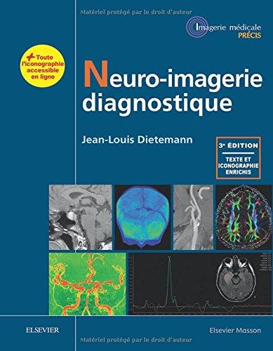 Neuro-imagerie Diagnostique par Jean-Louis Dietemann
