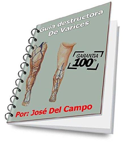 Guia destructora de varices: Adios a sus varices con este tratamiento (Spanish Edition)