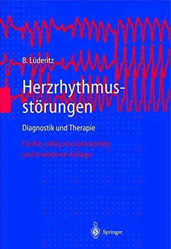 Herzrhythmusstörungen: Diagnostik und Therapie