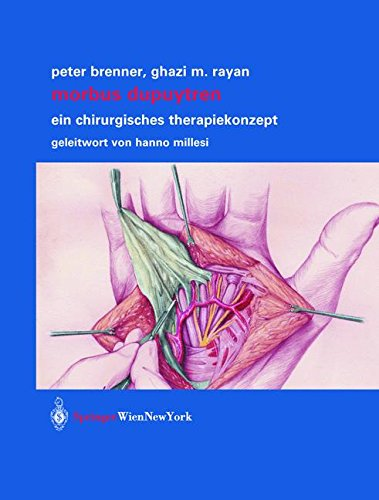 Morbus Dupuytren: Ein chirurgisches Therapiekonzept