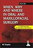 When,Why And Where In Oral And Maxillofacial Surgery Part Iii