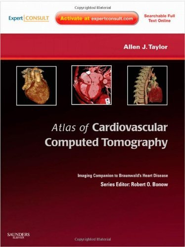 Atlas of Cardiovascular Computed Tomography: Expert Consult - Online and Print: Imaging Companion to Braunwald's Heart Disease, 1e (Imaging Techniques to Braunwald's Heart Disease) 1 Har/Psc Edition by Taylor MD, Allen J. (2009) Hardcover