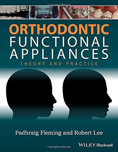 Orthodontic Functional Appliances: Theory and Practice (2016-06-27)