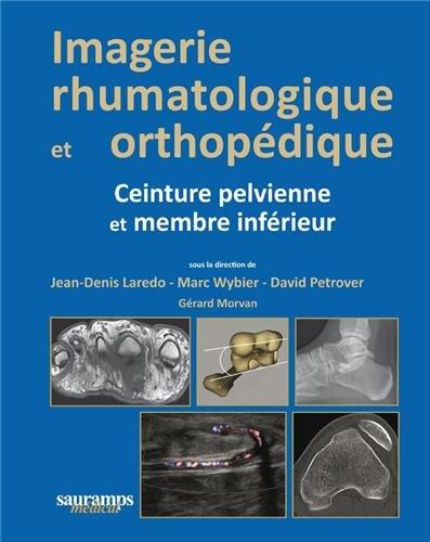 Imagerie rhumatologique et orthopédique : Tome 3, Ceinture pelvienne et membre inférieur par Jean-Denis Laredo