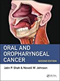 #9: Oral and Oropharyngeal Cancer
