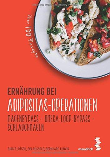 ernahrung-bei-adipositas-operationen-magenbypass-omega-loop-bypass-schlauchmagen-maudrichgesund-esse