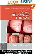 #6: An Atlas of Diseases of the Nail (Encyclopedia of Visual Medicine Series)