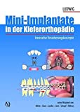 Mini-implants in Orthodontics: Innovative Anchorage Concepts by Bjorn Ludwig (2008-07-31)