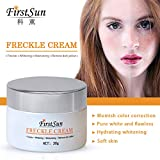 Best Melasma Treatments - Generic Anti Melanin Cream 30G Remove Melasma Dark Review