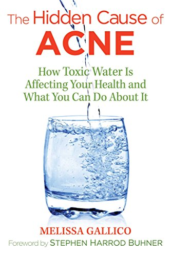 The Hidden Cause of Acne: How Toxic Water Is Affecting Your Health and What You Can Do about It (English Edition)