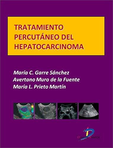Tratamiento percutáneo del hepatocarcinoma  (Este capítulo pertenece al libro Tratado de ultrasonografía abdominal) por Maria del Carmen Garre Sánchez