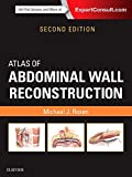 Atlas of Abdominal Wall Reconstruction, 2e