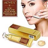 BeonJFx Crema para eliminar manchas de acné y cicatrices, tratamiento para reparación de la piel
