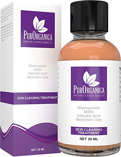 PurOrganica Acne Spot Treatment - Enhanced Fast Drying Correcting Formula for Clear and Clean Skin - Spot Remover With 2.5% Salicylic Acid, Niacinamide and 10% MSM - Shrinks Whiteheads and Fades Out Face Blemishes - 30ML - 100% Satisfaction or Your Money Back Guarantee