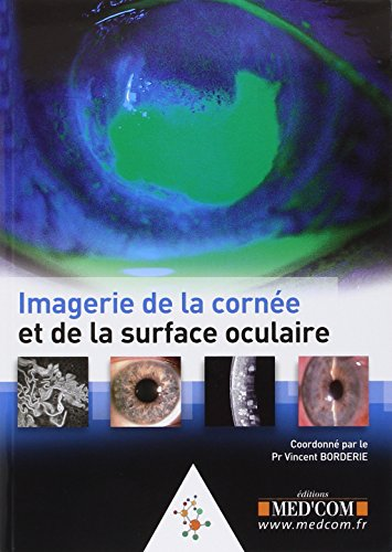 Image de la cornée et de la surface oculaire