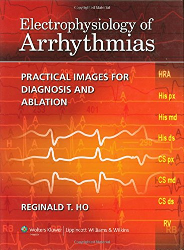 Electrophysiology of Arrhythmias: Practical Images for Diagnosis and Ablation por Reginald T. Ho